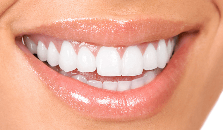 Professional Teeth Whitening Liverpool Bright Quot B1 Shade