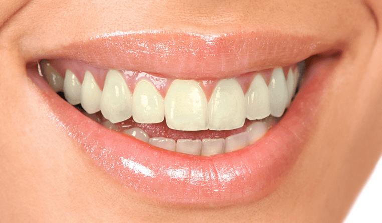 teeth whitening liverpool
