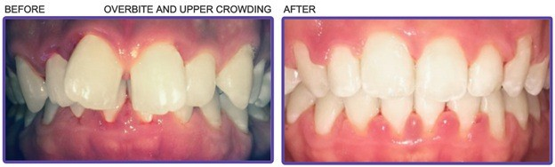 teeth overbite crowding before and after