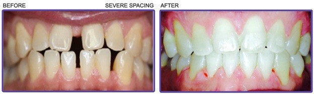 teeth severe spacing before and after