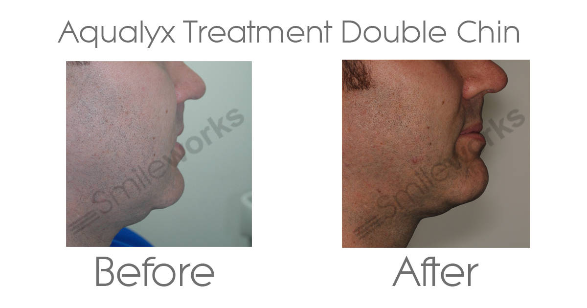 Aqualyx Chin treatment