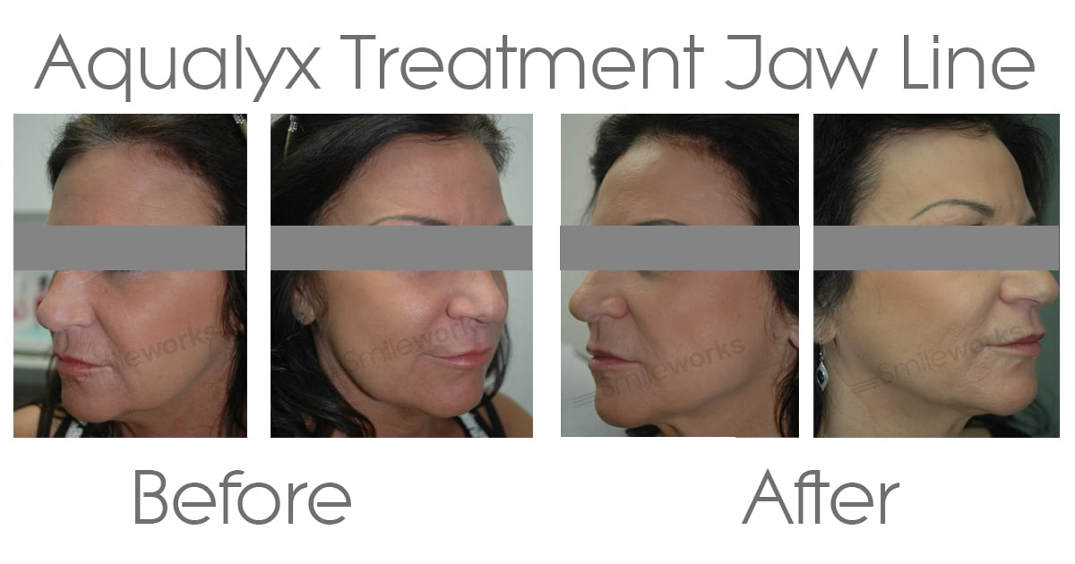 Aqualyx before and after