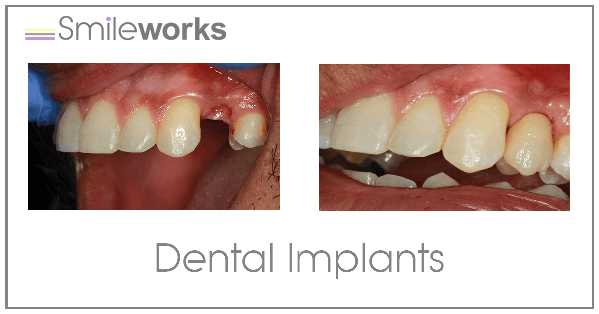 Dental Implants Liverpool | £94/m cost | Replace missing teeth in 2018