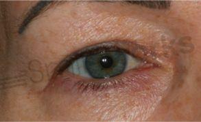 Plexr blepharoplasty before