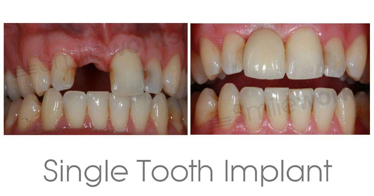Single tooth case 2018
