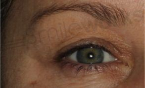 Plexr non surgical blepharoplasty before
