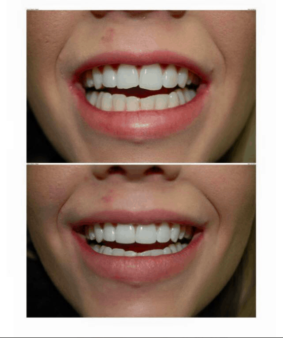 composite veneers & whitening