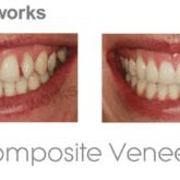 Composite veneers