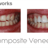 bleachng with composite bonding
