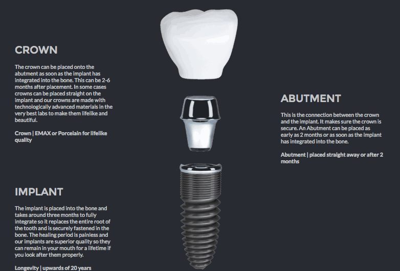 structural anatomy of a straumann implant