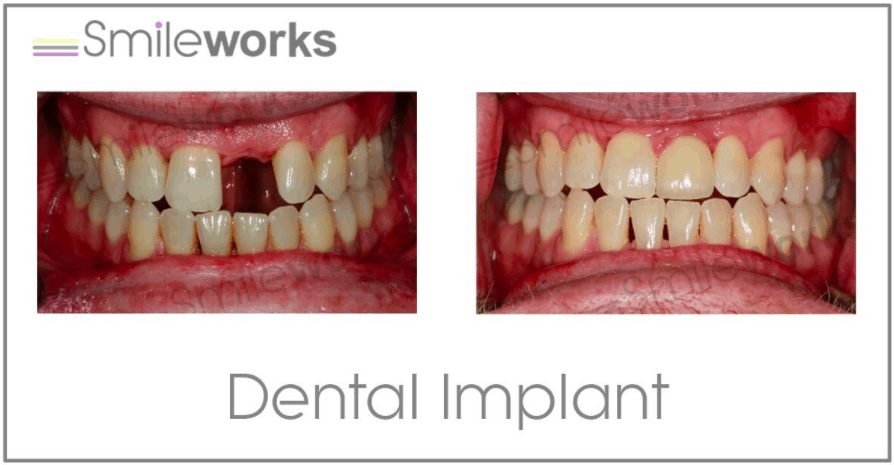 Beautiful front tooth implant restoration