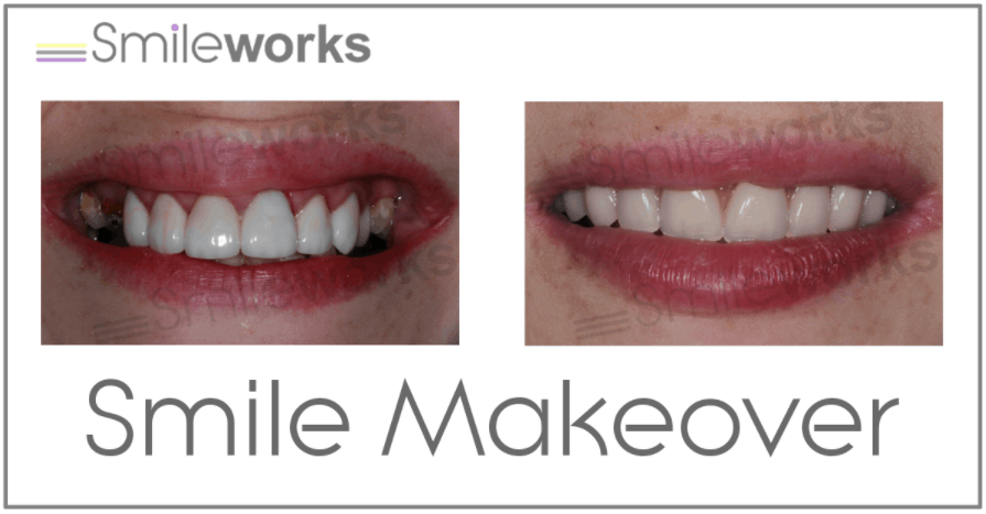 Smile makeover with implants before and after