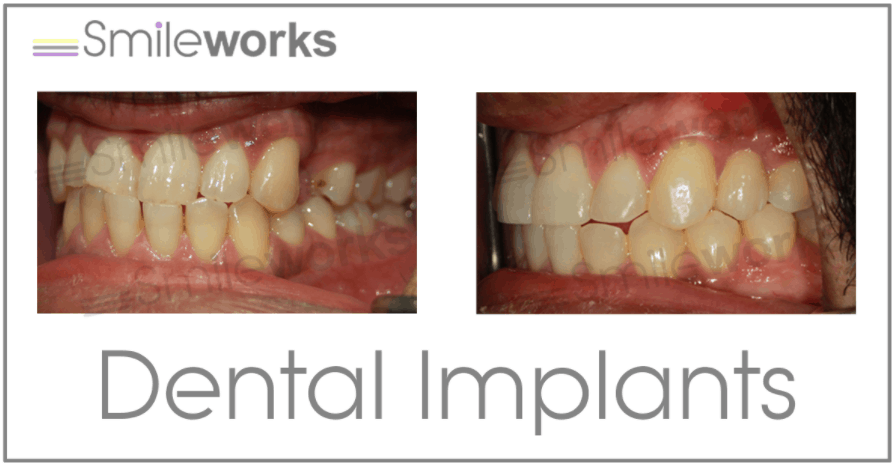 Implants before and after