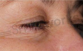 Non surgical eye lift Liverpool