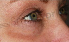 Non surgical eye lift liverpool prices