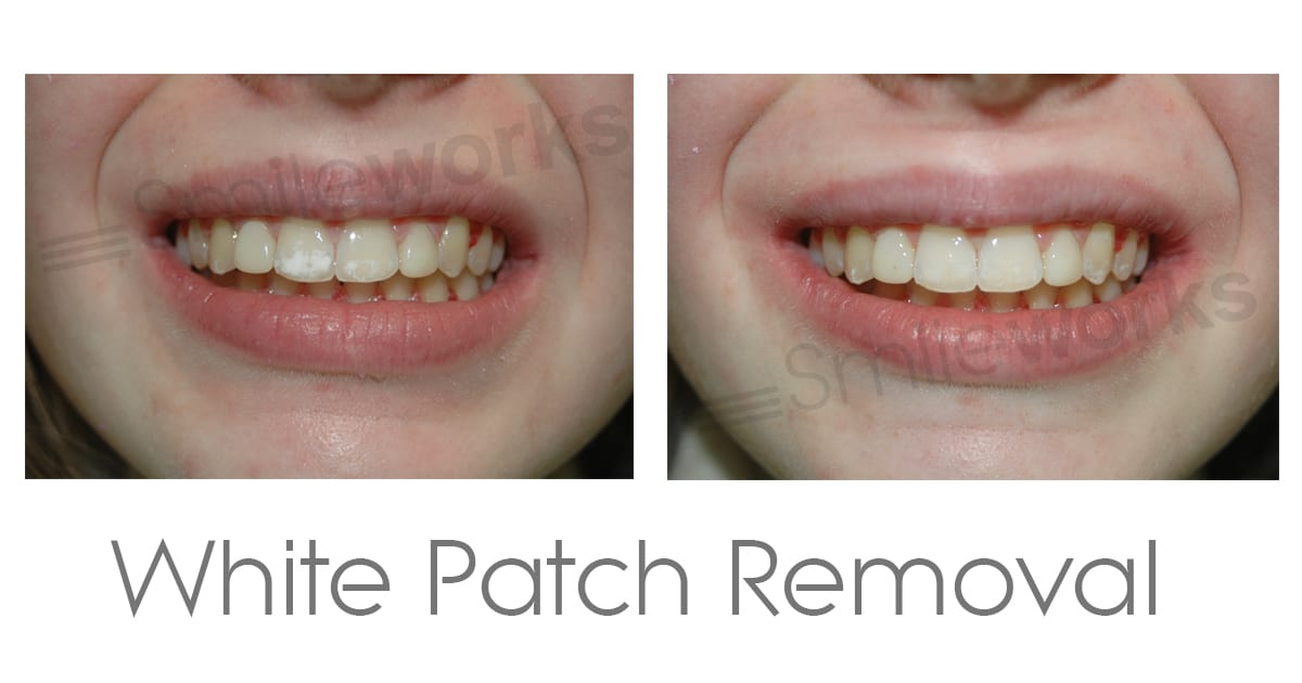 White Patch removal before and after
