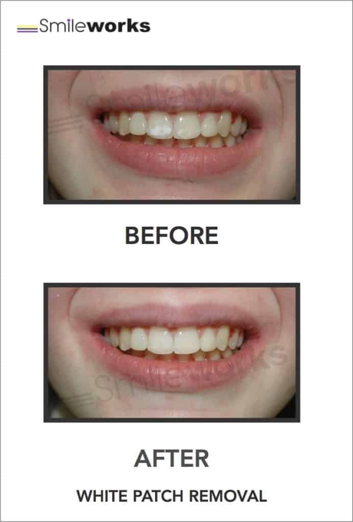 Professional Teeth Whitening Liverpool Bright B1 Shade Prices 199