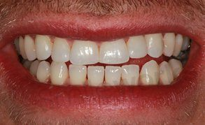 Veneers liverpool after