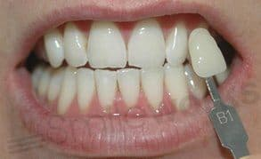 whitening liverpool after treatment