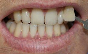 teeth whitening liverpool before treatment
