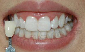 Professional whitening after