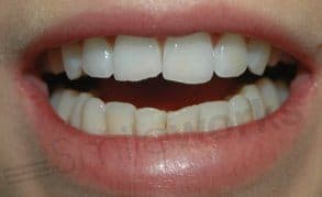 veneers liverpool before