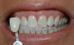 dentist whitening after