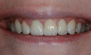 veneers liverpool after finished