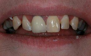 veneers liverpool before start