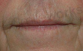 Botox before treatment