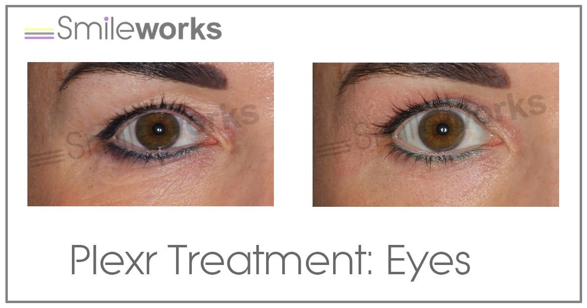 plexr eye lift