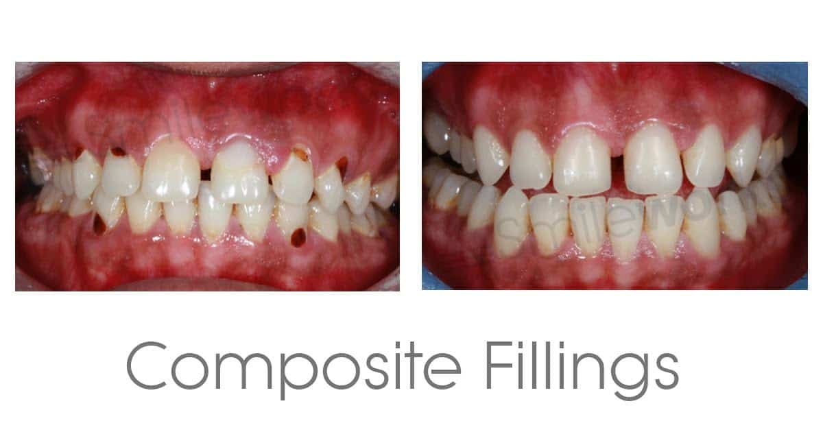Composite veneers we compare safety durability aesthetic and price composite fillings 2018 solutioingenieria Choice Image