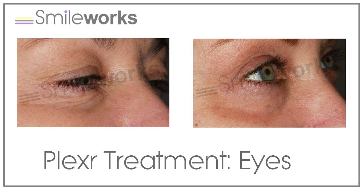 plexr non surgical upper eyelid surgery