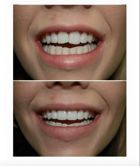 composite veneer before and after