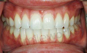 braces before and after finished case