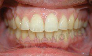 liverpool braces