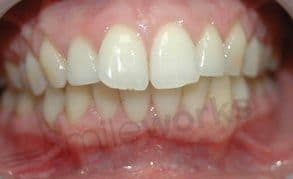 Inman Aligner (7 months) after picture