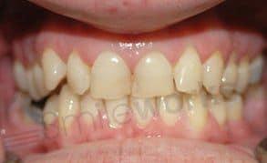braces liverpool
