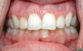 orthodontics liverpool case before