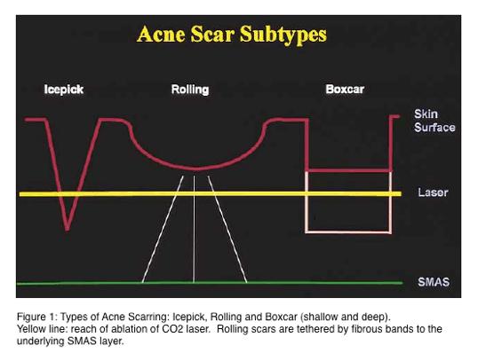 Acne scar subtypes