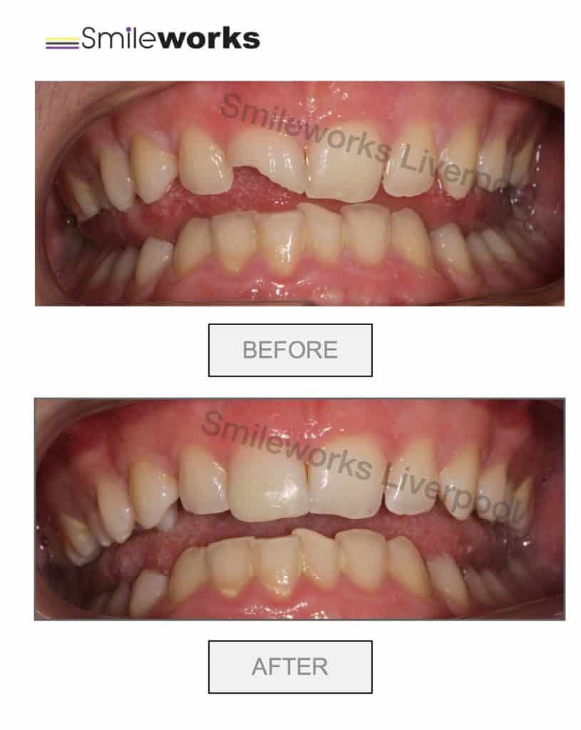 Broken tooth fixed with resin to restore enamel