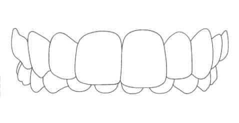 overbite braces