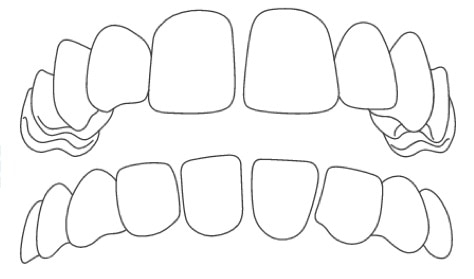 braces for gappy smile