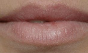 lip shaping before picture