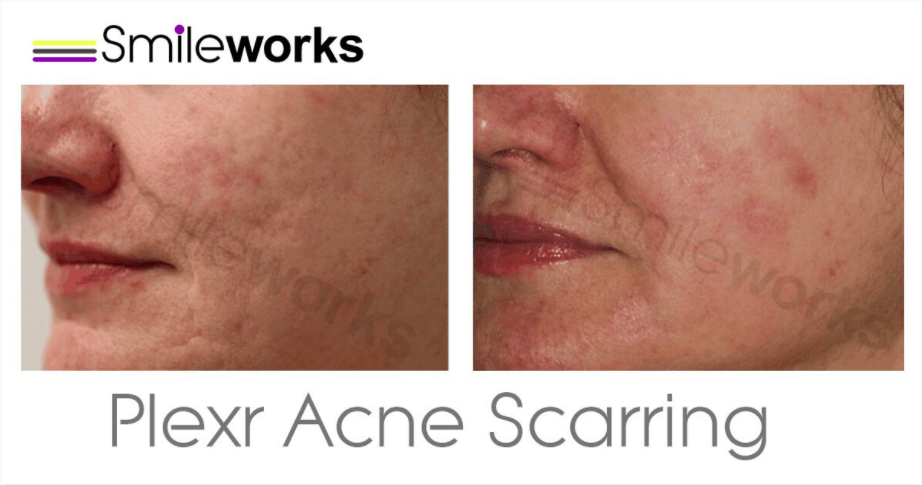 Acne scar removal with plexr
