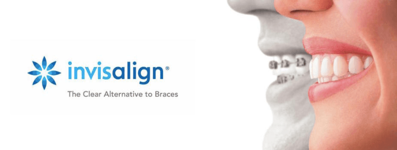 Invisalign® invisible braces liverpool
