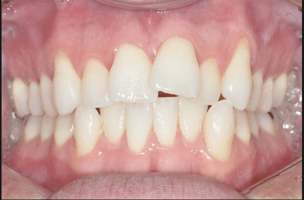 Overcrowding In Adults Treated With Braces Stripping Smileworks