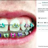 Multi coloured braces
