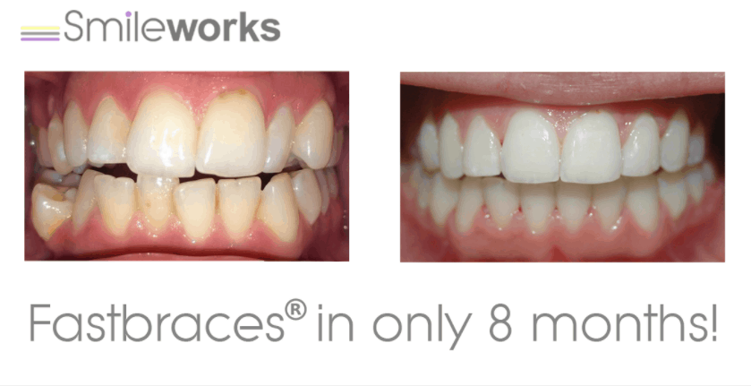 fastbraces liverpool before and after