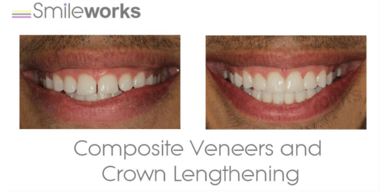 composites and crown lengthening before and after